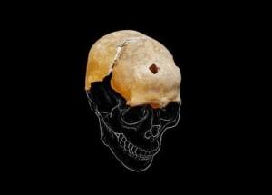 Cranio rinvenuto nella cripta della basilica di S. Pietro, a Bologna. VIII-X sec